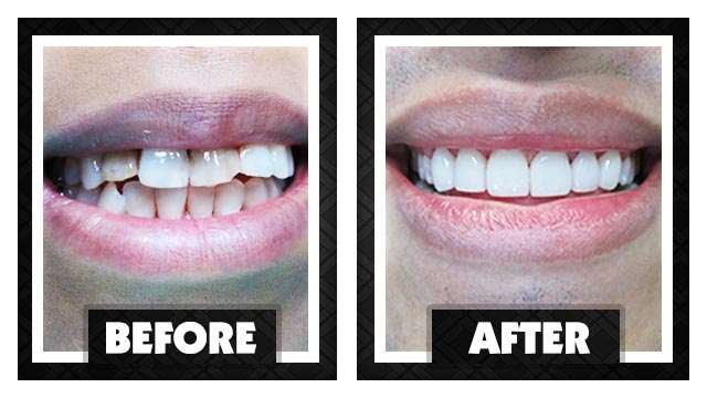 Cosmetic Dentistry Done Right